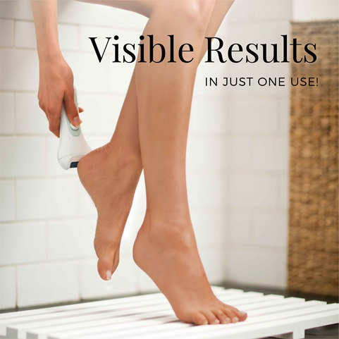 remington reveal callus remover with visible results cr4000b
